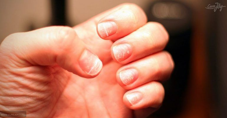 White Spots On Nails Should You Be Worried Remove Acrylic Nails Nails After Acrylics White Spots On Nails