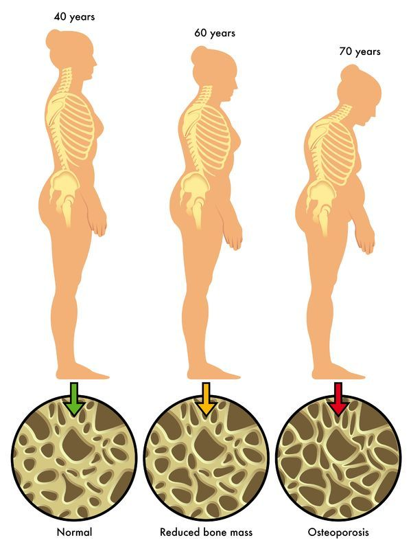 24+ How does menopause affect osteoporosis viral