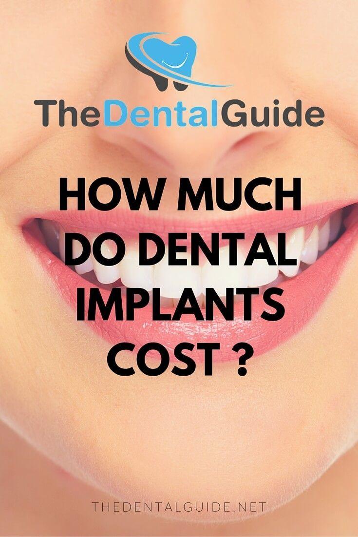 Pin on dental implants cost teeth