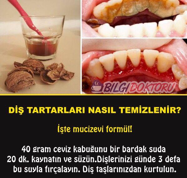Diş Tartarlarına Ceviz Kabuğı