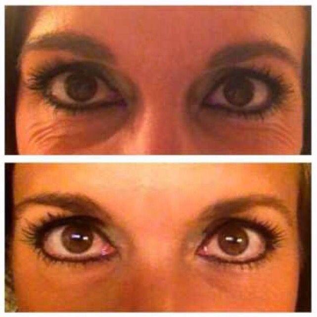 REDEFINE multi function cream + REDEFINE eye cloths for 1 month   https://ahubner.myrandf.com/Shop/Product/AAEY015