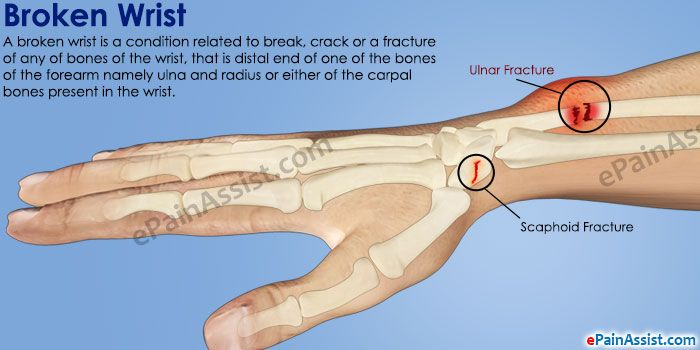 24+ Tips for living with a broken wrist inspirations