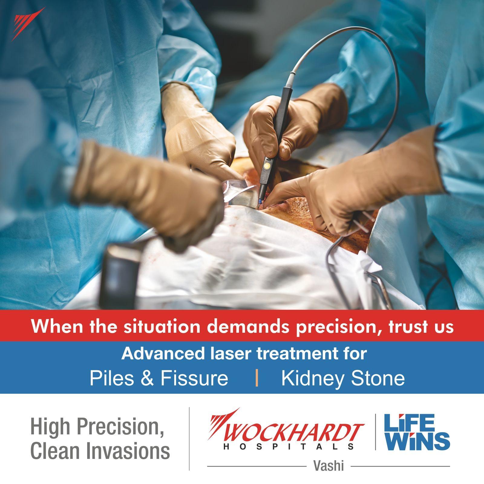 Advanced Laser Technology At Wockhardt Hospital Vashi Facilitates Piles Fissures Kidney Stone Removal Procedures Wi Laser Treatment Hospital Kidney Stones