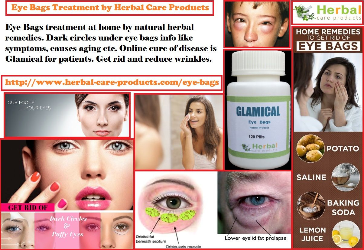 1d540423c5d8 Natural Herbal Treatment for Eye Bags and Symptoms