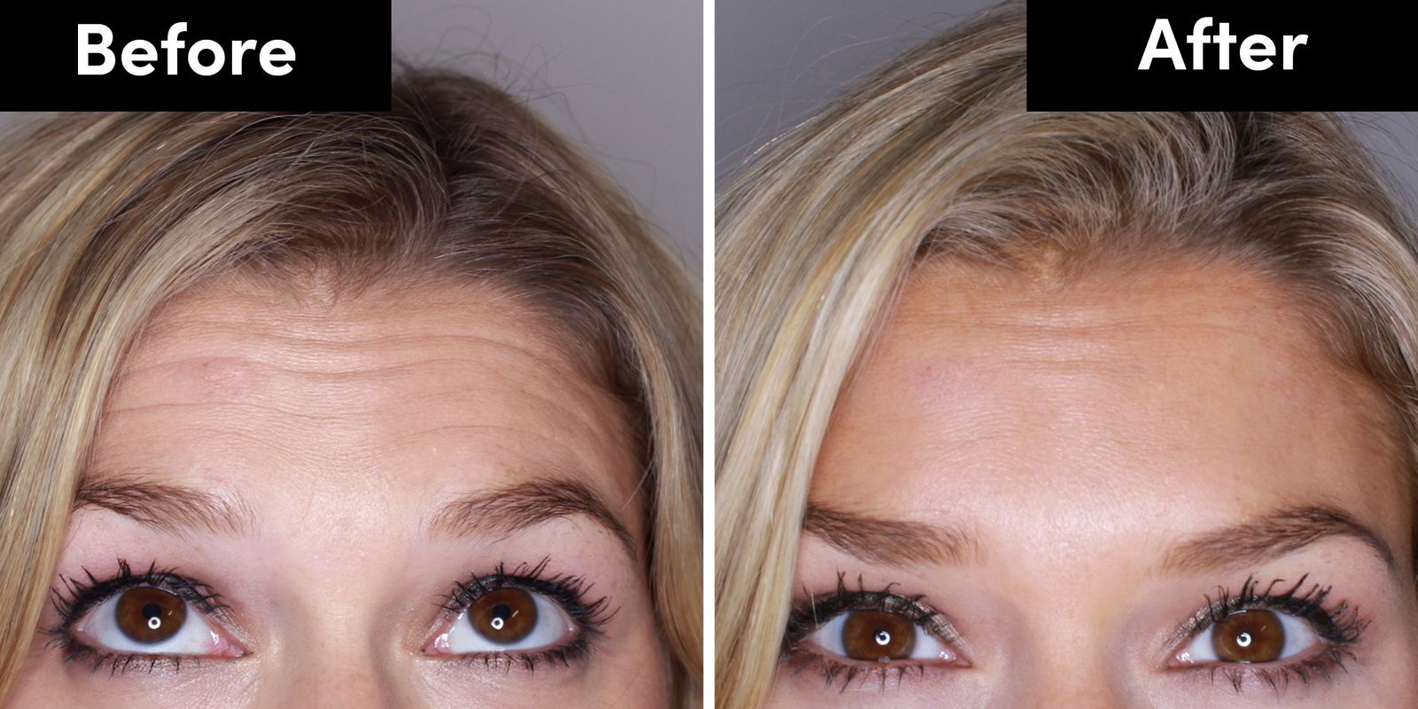 9 things I wish I'd known before getting botox Botox