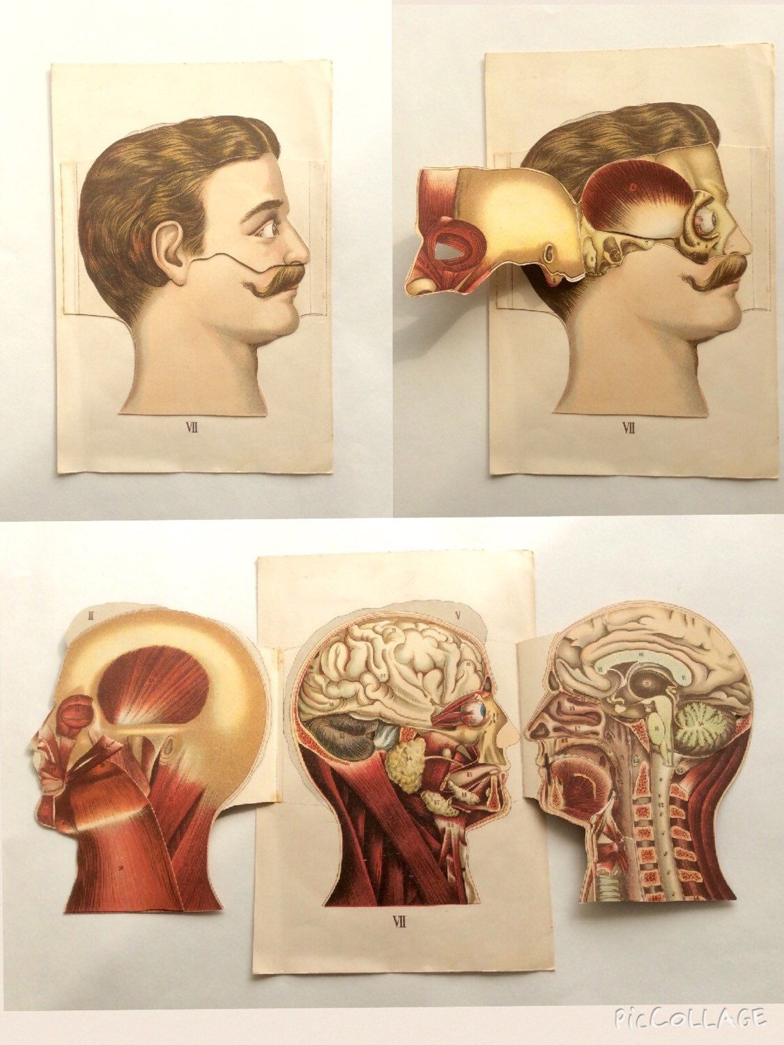 Vintage 1890s german medical anatomy diagram fold out vintage 1890s german medical anatomy diagram fold out chromolithograph bookplate head brain skull muscles svankmajer collage ccuart Image collections