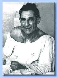 Louis Washkansky - 1967...1st human heart transplant recipient. He lived 18  days with the new heart.
