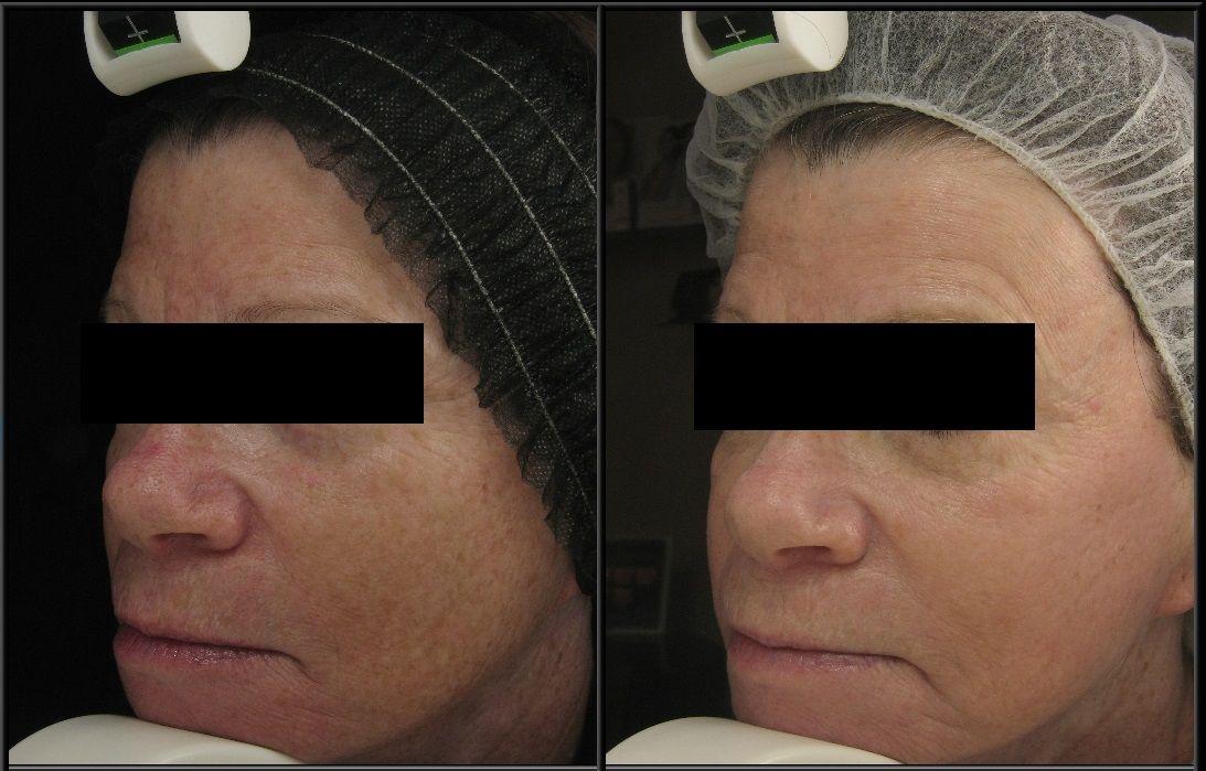 Get Your Pearl On Sylvana Med Spa Pearl Laser Cutera Rejuvenate Refresh Sylvanasolution Laser Rejuvenation Uneven Skin Texture Fractional Laser