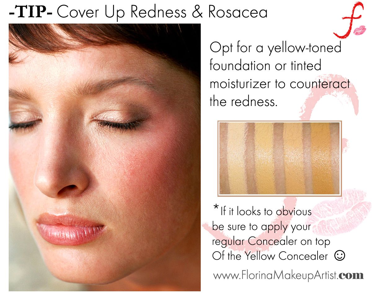 Cover Up Redness And Rosacea. Rosacea, Beauty hacks