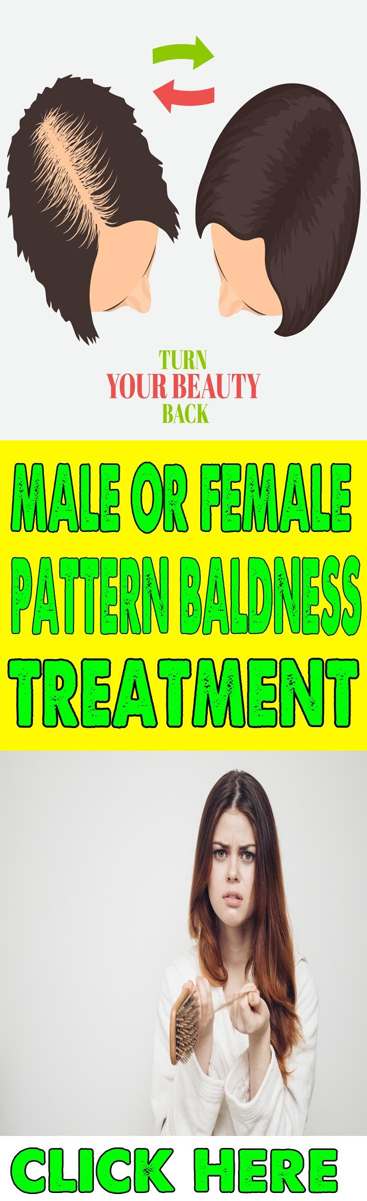 20++ Osteoporosis treatment for hair growth viral