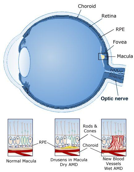 Macular Degeneration Symptoms For Dry And Wet Amd Macular