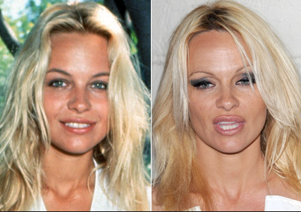 pamela anderson before plastic surgery before and after