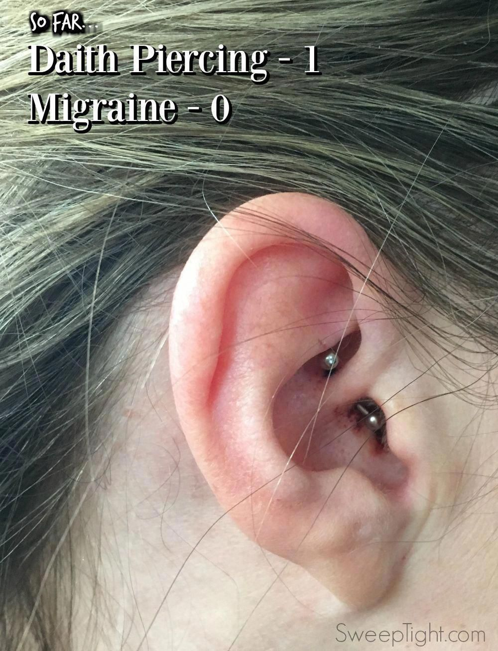 Aspirin for piercing bump  I Tried the Daith Piercing for Migraines  Headaches And Migraines