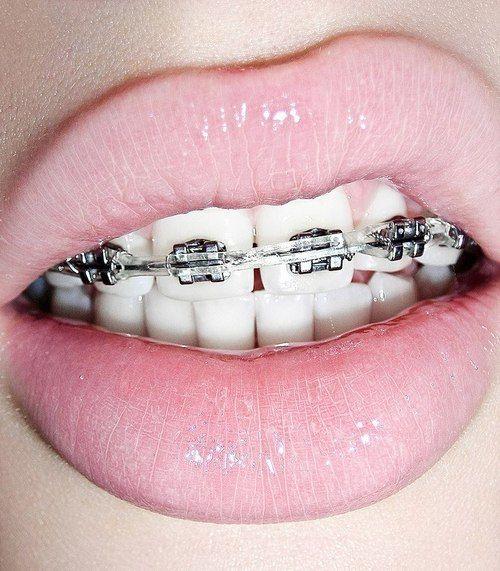 como hacer limpieza dental con brackets