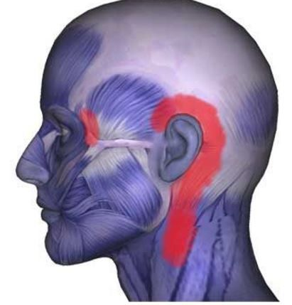 muscle pain behind ear