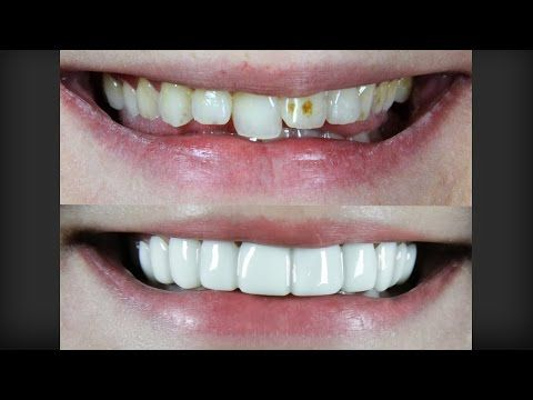 brighter image lab veneers reviews