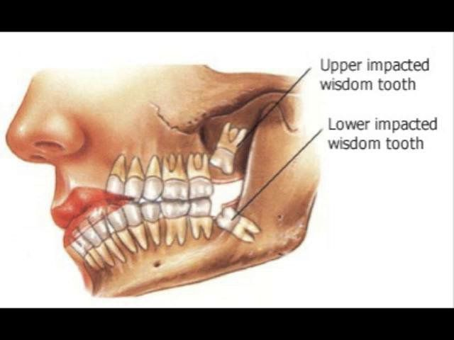Start the new year with a happy smile by eliminating potential common problems that may be caused by your Wisdom teeth.