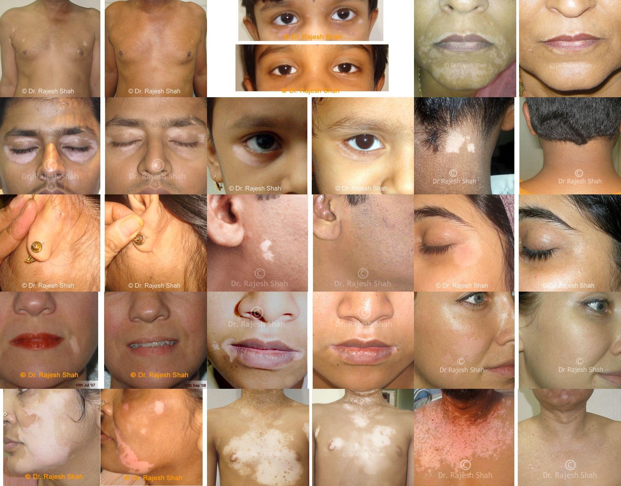 Homeopathy Can Help To Control Vitiligo To Great Extent At Life Force We Have Treated More Than 4000 Patients For Vi Vitiligo Vitiligo Treatment Vitiligo Cure