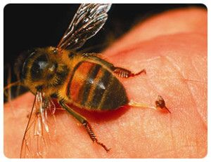Top Natural Home Remedies For Yellow Jacket Stings Bee Sting Allergy Remedies For Bee Stings Bee Sting First Aid
