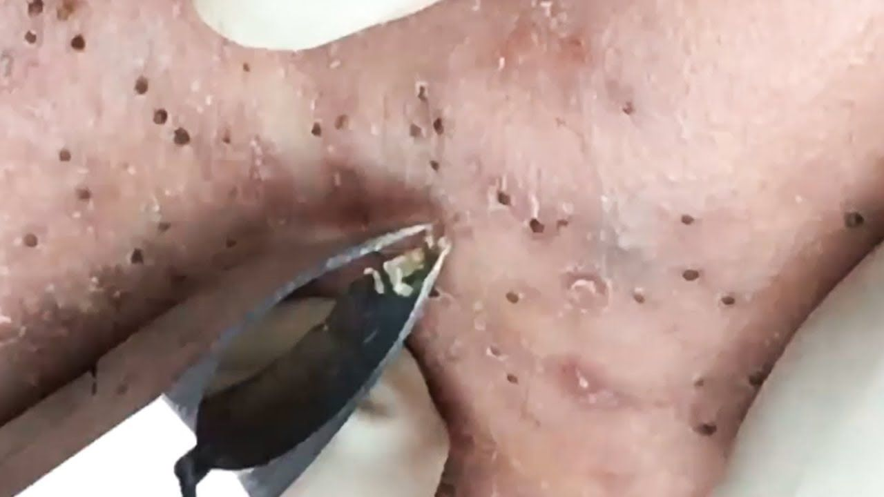 Blackhead Squeeze Popping Pimples Removal Part 14 Acne Lgs Slim Fit Youth Boy Giant Leap Merah M Acnetreatment Asmr Beauty