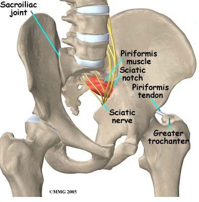 Si Will Not Stay In Place Sacroiliac Si Joint Problems Health