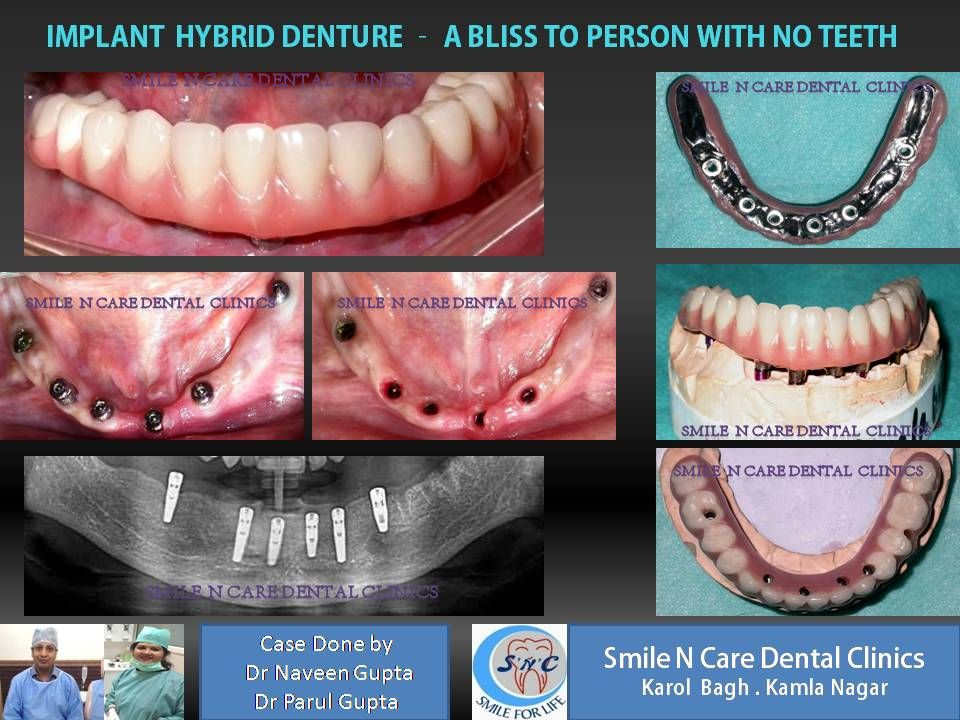 Say No To Denture And Yes To Dental Implants Replace Your Removable Loose Ill Fitting Denture With Fixed Implant Dent Dental Implants Denture Implants Dental