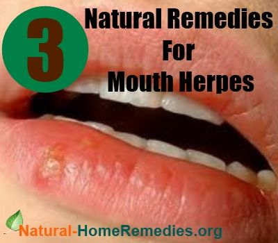 Join. happens. how to get rid of facial herpes