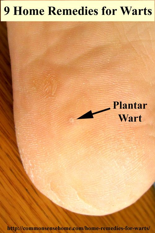 15 Home Remedies For Warts Easy Home Wart Treatments Home
