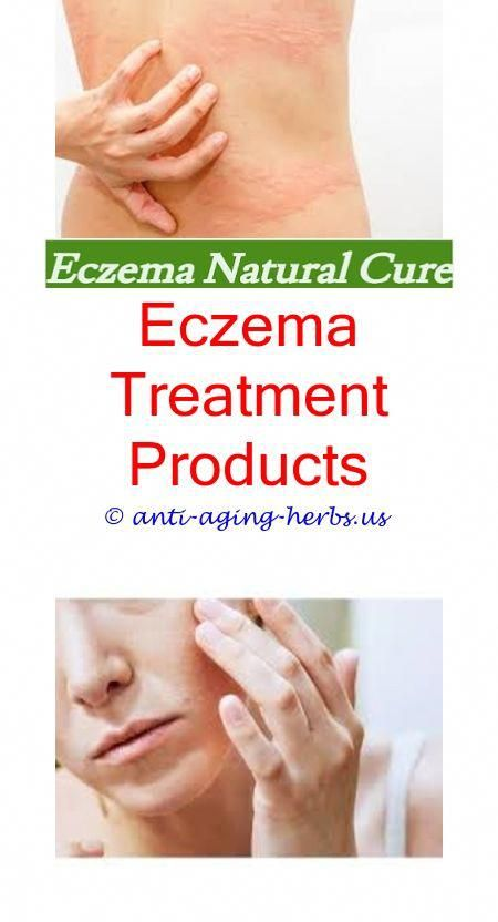 Stop eczema itching fast Natural eczema cream for babies