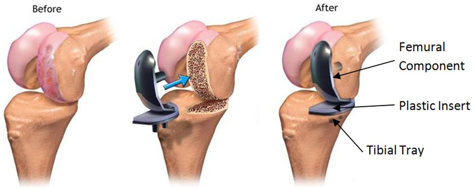 The Cost Of Total Knee Replacement Technique Is Little Higher Than