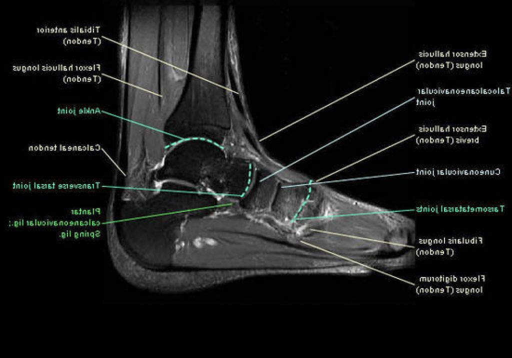 Mri Ankle Anatomy Ankle Anatomy Pinterest Ankle Anatomy And
