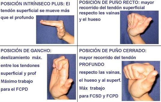 Resultado de imagen para tendones del dedo medio