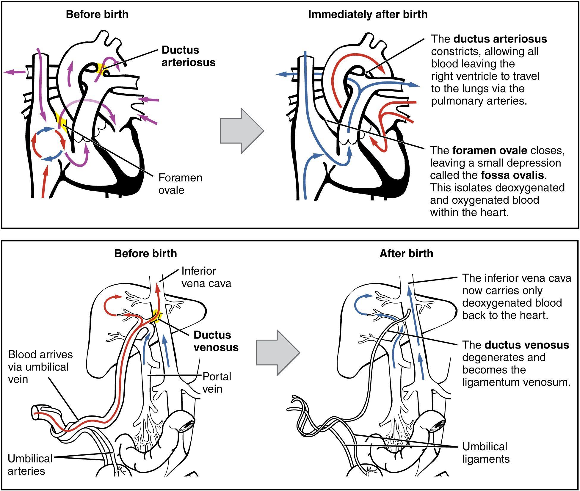 Fetal Circulation Changes At Birth