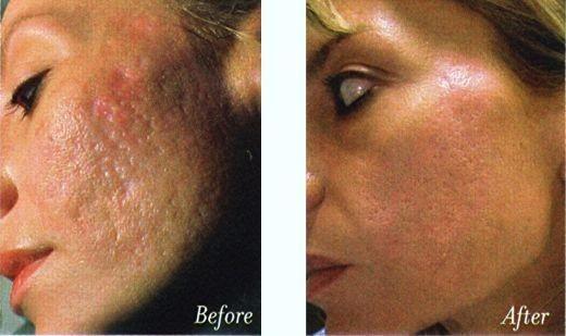 como quitar cicatrices dela cara por acné