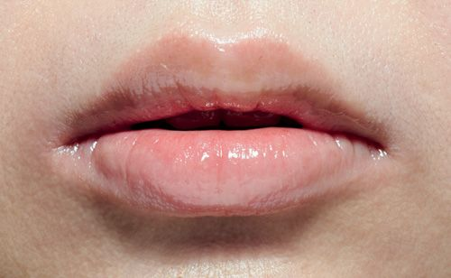 Uneven upper lip - one side of the philtrum is larger than