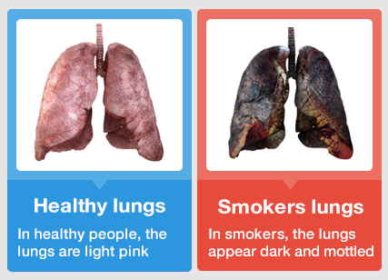 healthy lungs vs smokers