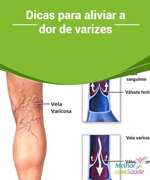 ce înseamnă varicoza)
