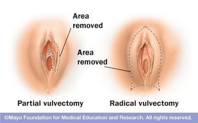 Vulvar Cancer Treatment PDQPatient Version -