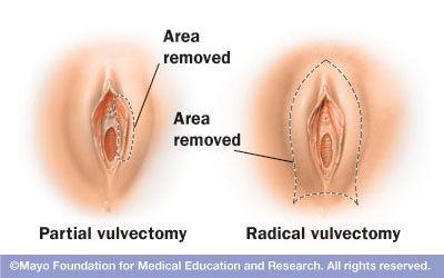 Vulvar Cancer Treatment PDQPatient Version -