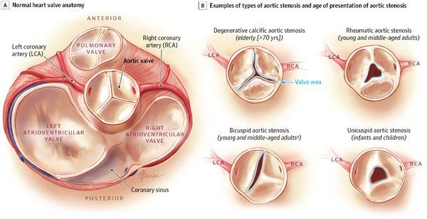Pin by Caity Flaherty on Aortic Stenosis | Pinterest | Aortic ...