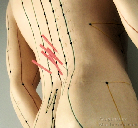 Is acupuncture helpful for relieving back pain?