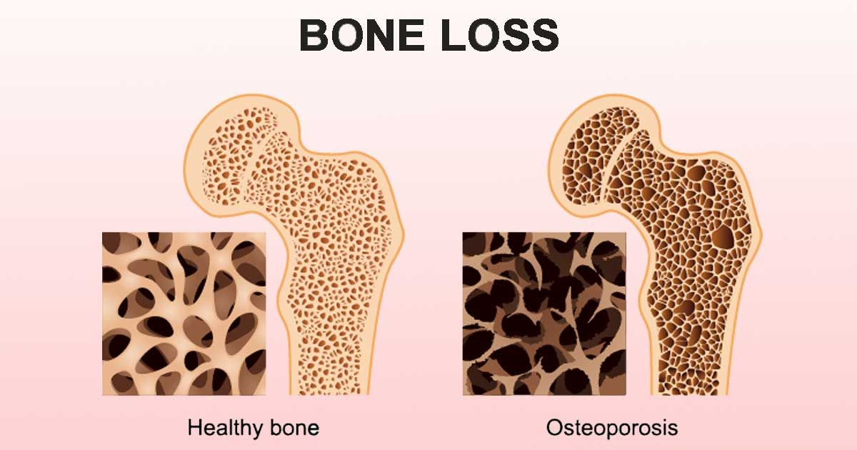 12+ Does having osteoporosis qualify for disability viral