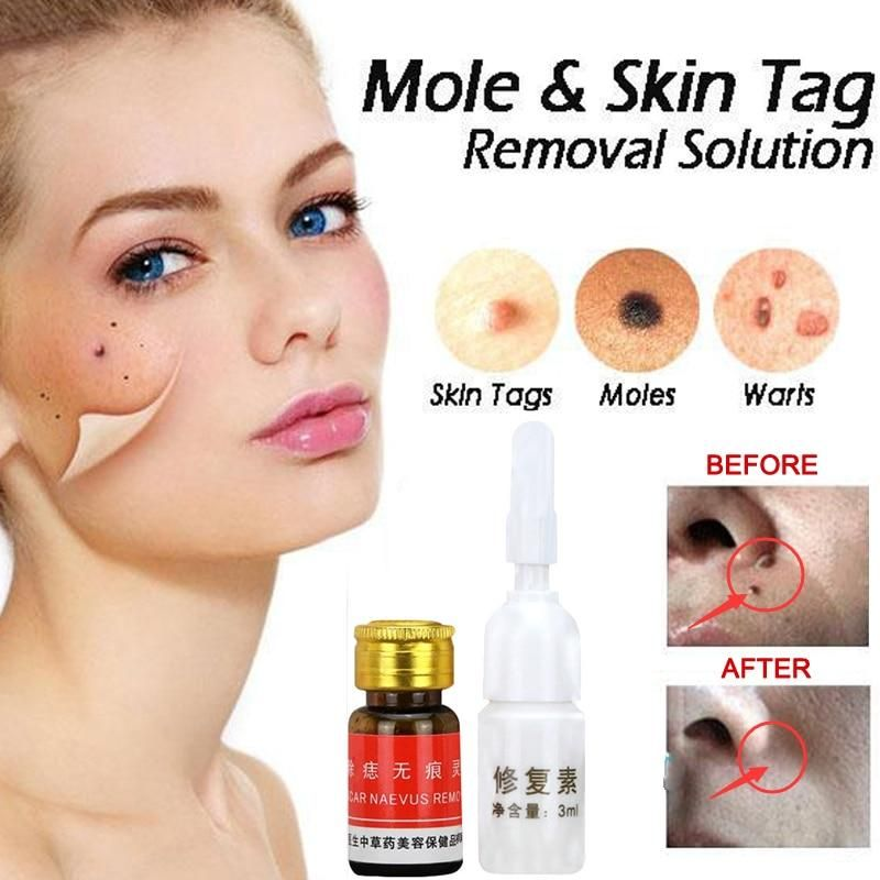 Mole Amp Skin Tag Removal Solution Let S Face It Moles Skin