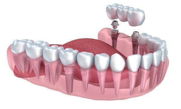 Très petits implants dentaires Étapes Portebrosse à dents  Dental Implants Facts Lost
