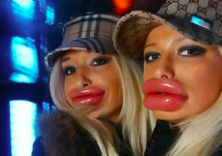 Bad Botox Lips