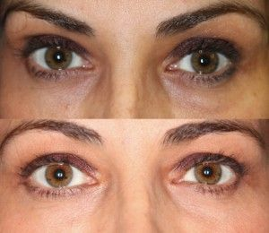 Dr. John Burroughs, Colorado Springs Ophthalmic Plastic Surgeon, Shares A Lower Eyelid Result.  John Burroughs, MD PC Surgery Eyelids, Face, and Orbits Colorado Springs, Pueblo, Canon City 719-473-8801