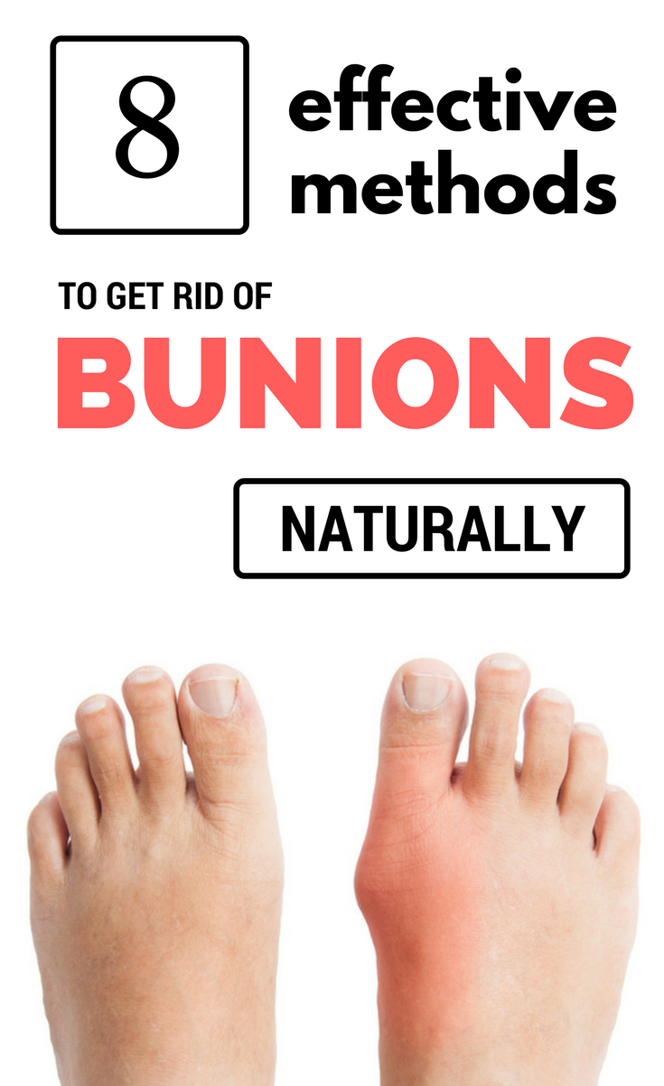8 Effective Solutions For Bunion Pain foto