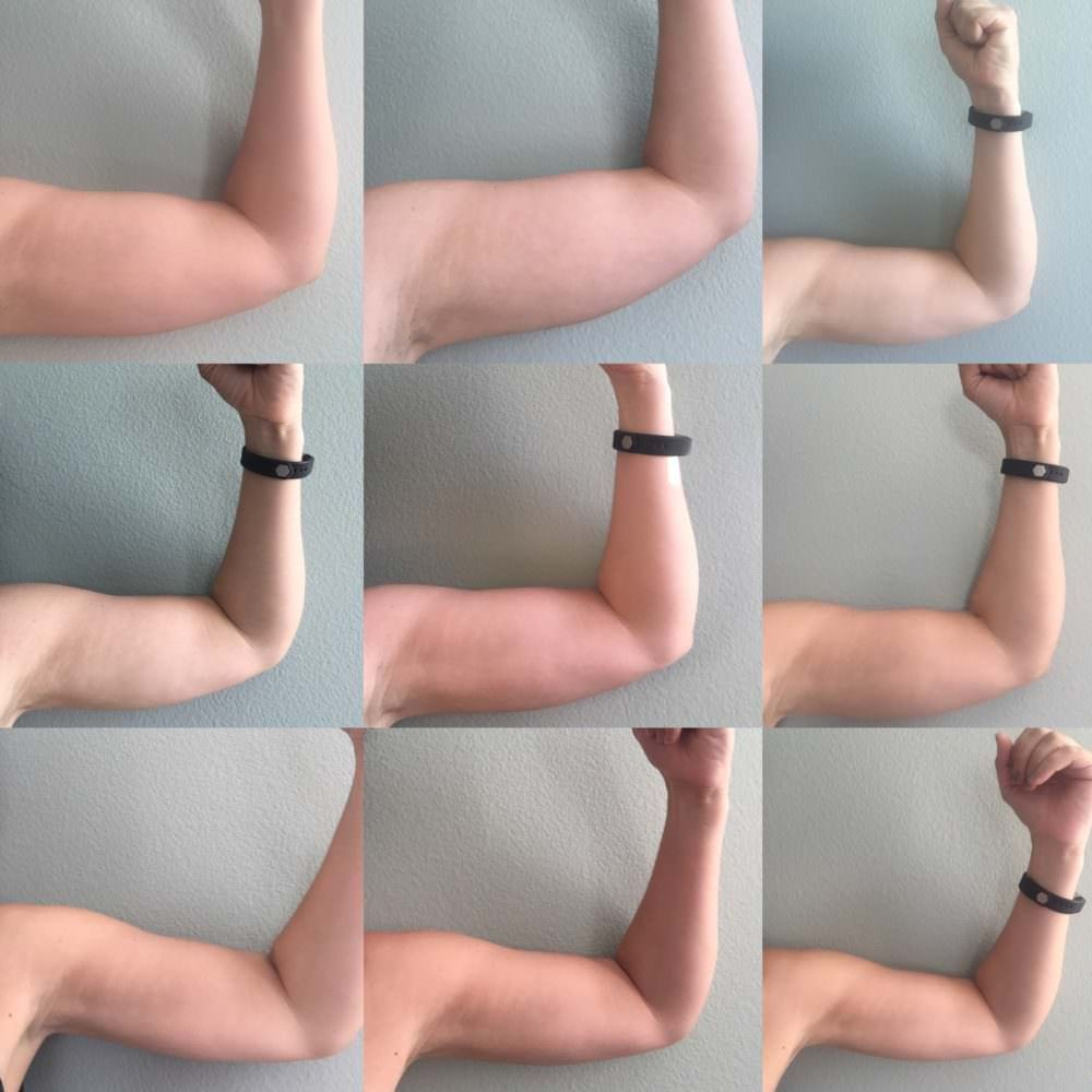 4d079209b0ee955362f901a67479f272 - How To Get Rid Of Lumpy Fat On Arms