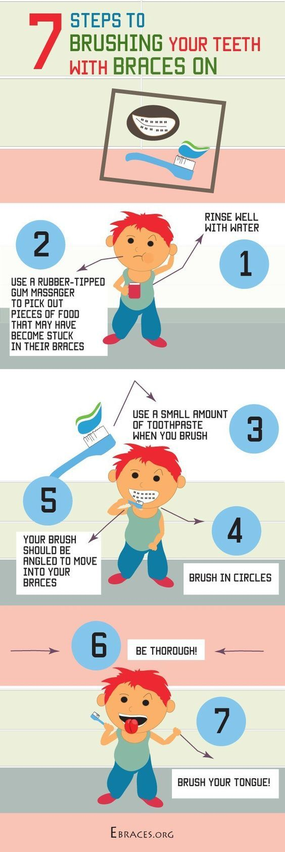 7 steps to brushing your teeth with braces on dental