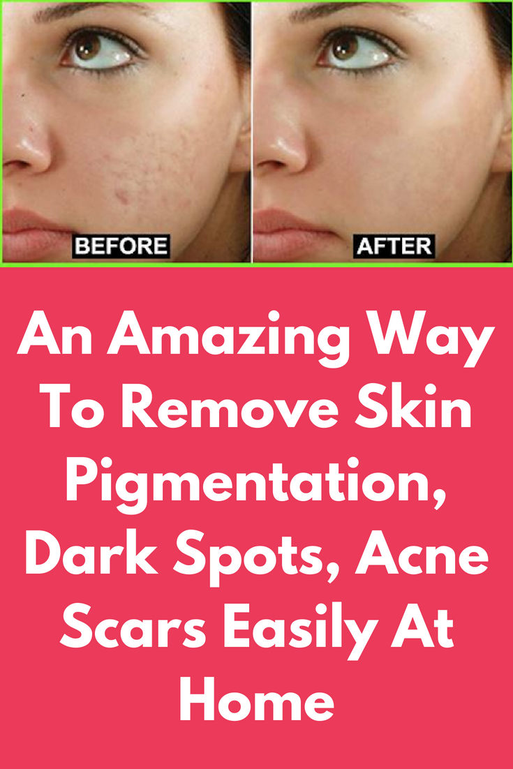 Pin on Skincare Tips